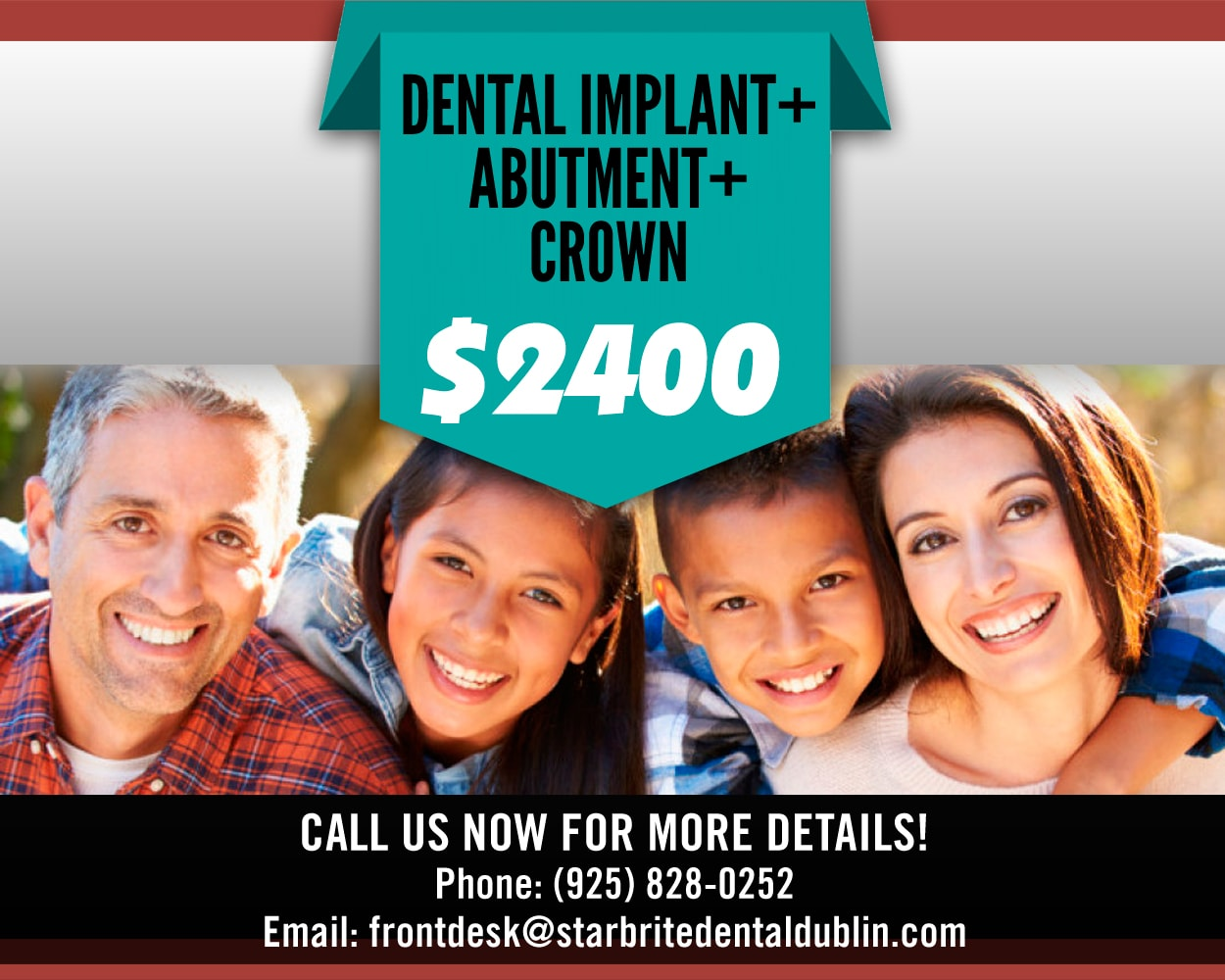Dental Implant+Abutment+Crown, StarBrite Dental - Dublin