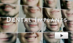 Dental Implant Dublin CA - Dental Implant  Video