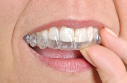 Invisalign Dublin CA - Invisible Braces