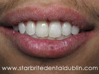 Smile Gallery Dublin CA  - Fast Braces After Case 5