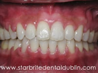 Smile Gallery Dublin CA  - Fast Braces After Case 6