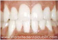 Smile Gallery Dublin CA  - Fast Braces After Case 1