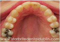 Smile Gallery Dublin CA  - Fast Braces After Case 4