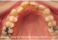 Smile Gallery Dublin CA  - Fast Braces Before Case 4