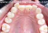 Smile Gallery Dublin CA - Invisalign Before Case 01