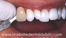 Smile Gallery Dublin CA - Teeth Whitening After Case 2