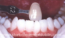 Smile Gallery Dublin CA - Teeth Whitening After Case 3