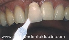 Smile Gallery Dublin CA - Teeth Whitening Before Case 5