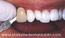 Smile Gallery Dublin CA - In-Office Zoom Teeth Whitening After Case 2
