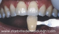 Smile Gallery Dublin CA - Teeth Whitening Before Case 1