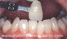 Smile Gallery Dublin CA - Teeth Whitening Before Case 3