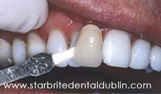 Smile Gallery Dublin CA - Teeth Whitening After Case 5