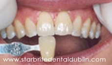 Smile Gallery Dublin CA - In-Office Zoom Teeth Whitening Before Case 1