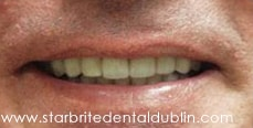 Smile Gallery Fremont - Porcelain Veneers After Case 01