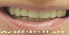 Smile Gallery Fremont - Porcelain Veneers After Case 02