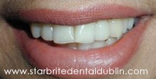 Smile Gallery Fremont - Porcelain Veneers After Case 03