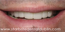 Smile Gallery Fremont - Porcelain Veneers After Case 04