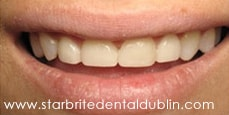 Smile Gallery Fremont - Porcelain Veneers After Case 05