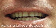 Smile Gallery Fremont - Porcelain Veneers Before Case 01
