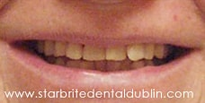 Smile Gallery Fremont - Porcelain Veneers Before Case 02