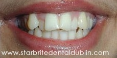 Smile Gallery Fremont - Porcelain Veneers Before Case 03