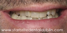 Smile Gallery Fremont - Porcelain Veneers Before Case 04