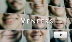 Porcelain Veneers Dublin CA - Veneers  Video