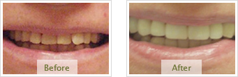 Porcelain Veneers Dublin CA - Before Treatment 02