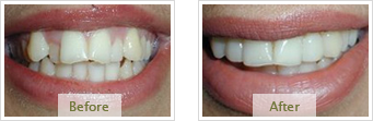 Porcelain Veneers Dublin CA - Before Treatment 03