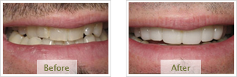 Porcelain Veneers Dublin CA - Before Treatment 04