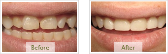 Porcelain Veneers Dublin CA - Before Treatment 05