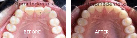 Invisalign Before After Case 01