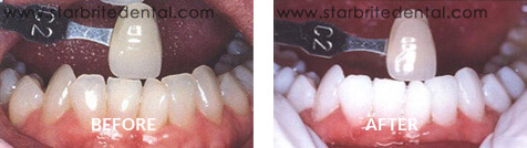 Teeth Whitening Before After Case 03