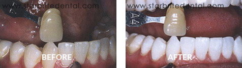 Teeth Whitening Before After Case 04