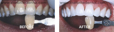 Teeth Whitening Before After Case 01