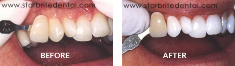 Teeth Whitening Before After Case 02