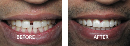 Veneers Before After Case 01