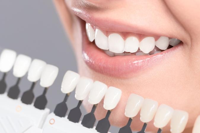 Dr. Munira Lokhandwala, Star Brite Dental Provides