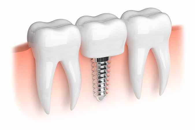 Learn about tooth replacement options such as dental implants from Dublin dentist