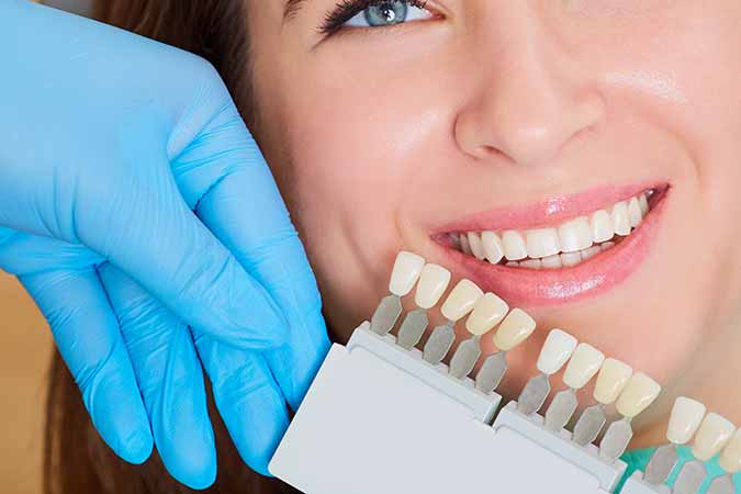 Benefits of Porcelain Veneers Treatment in Dublin, CA