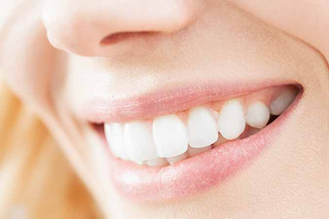 Dr. Munira Lokhandwala of StarBrite Dental in Dublin, CA assists men and women in determining if they can benefit from orthodontic treatment with Six Month Smiles.