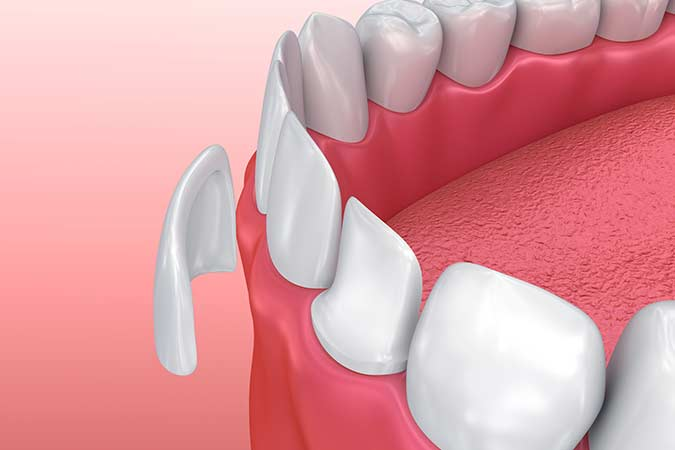 Cosmetic dentist in Dublin, CA can transform your smile with porcelain veneers
