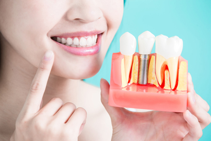Cost and Benefits of Dental Implants in Pleasanton CA area