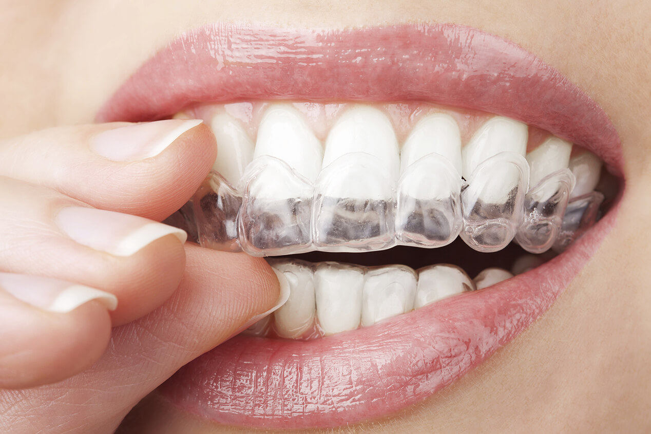 Clear Aligners at StarBrite Dental in Dublin CA Area