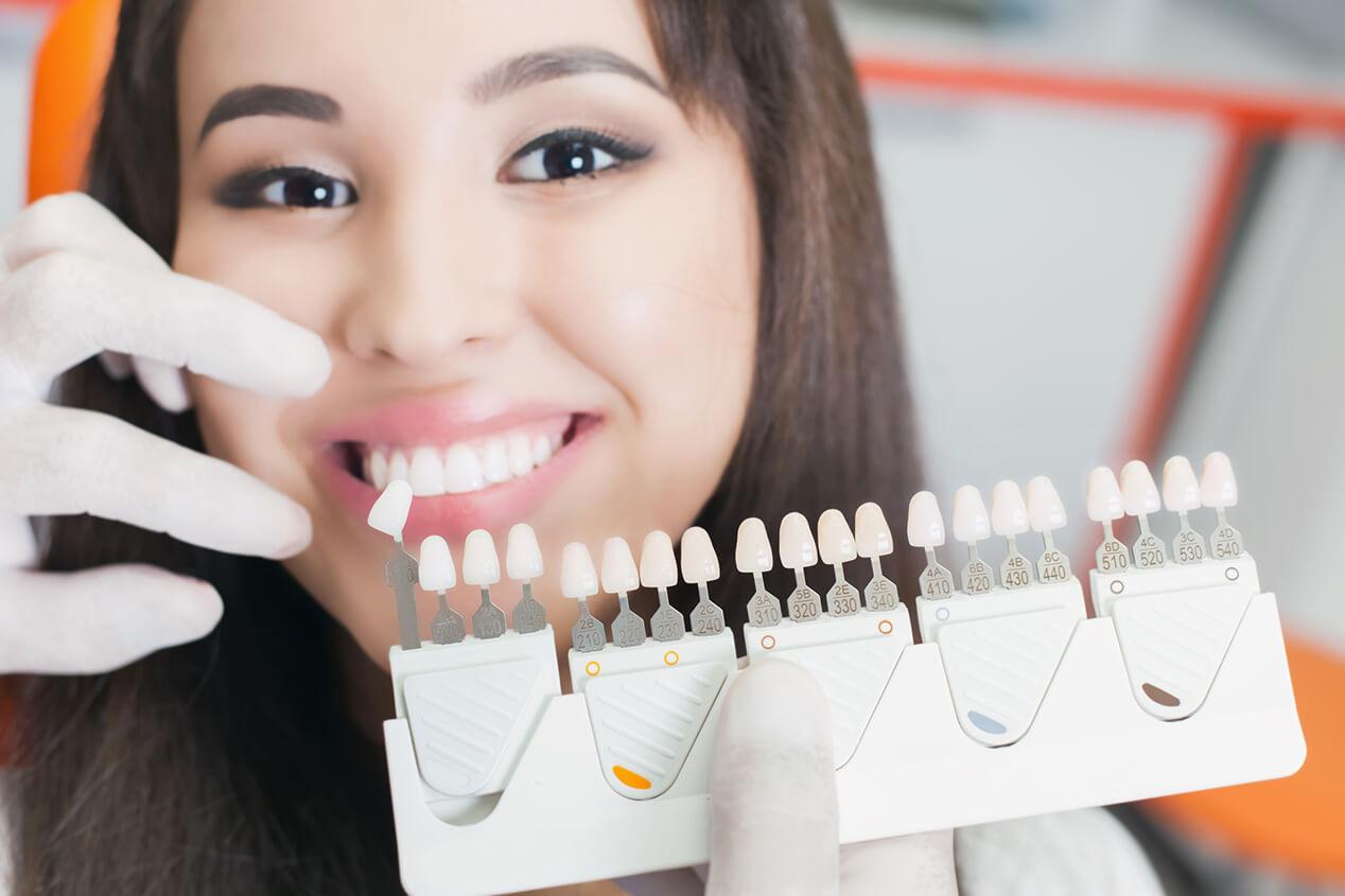 Cosmetic Teeth Veneers at StarBrite Dental in Dublin CA Area