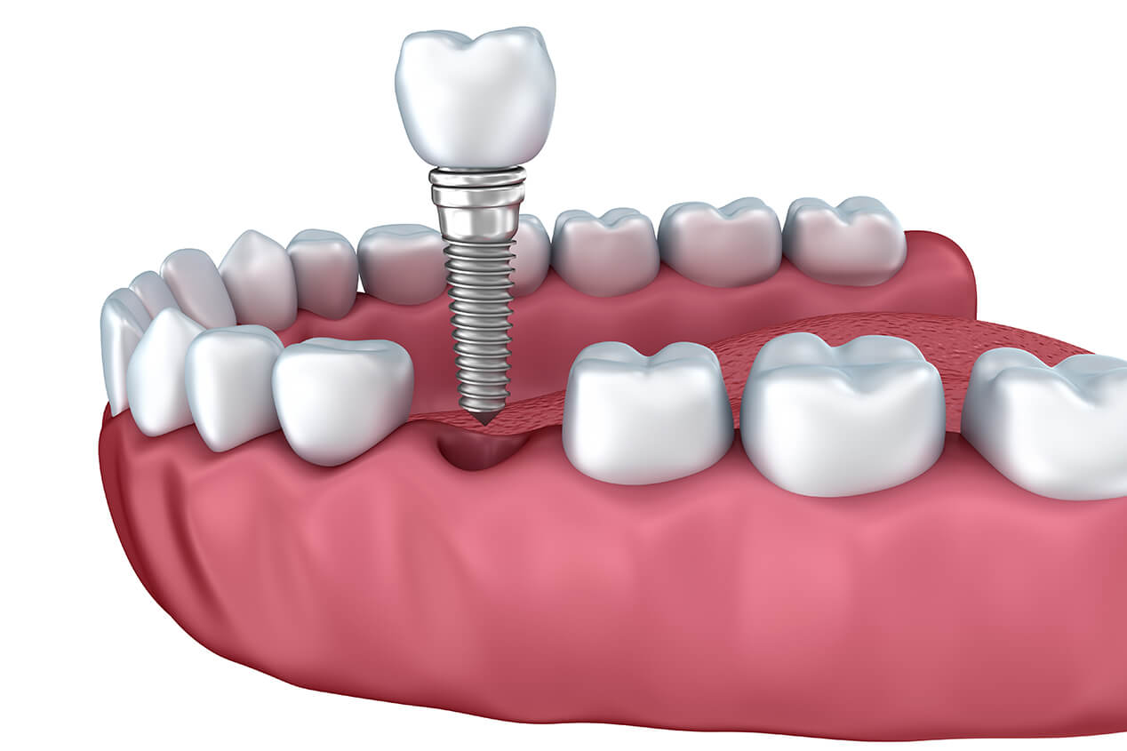 Dental Implants Dentist Near Me in the Pleasanton, CA Area