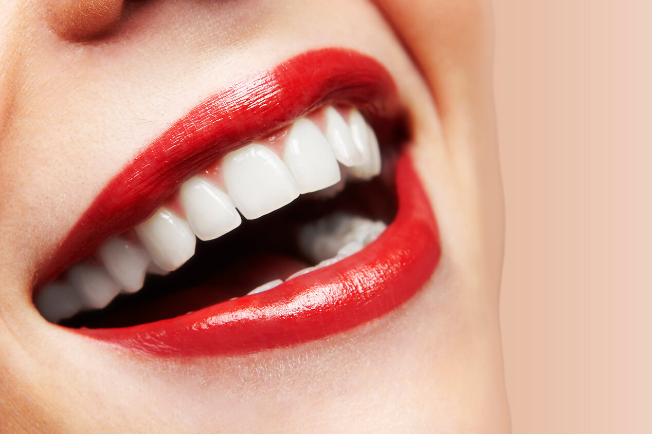 Dental Office Provides Porcelain Veneers for Aesthetic Improvements to the Teeth in Dublin, CA Area